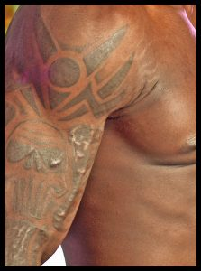 Tattoo keloid scar