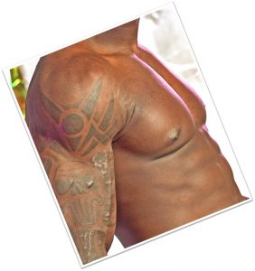 Laser Tattoo Removal on Dark Skin