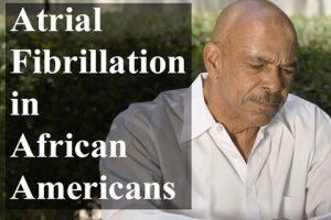 A Fib in African Americans Carusel