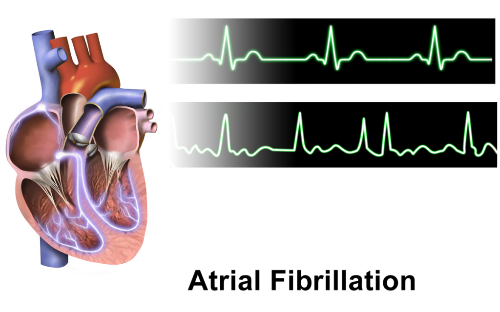 Atrial Fibrillation In African Americans