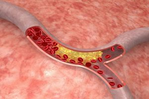 Is Cholesterol Lowering Medicine Bad for You?