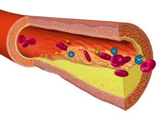 Is Cholesterol Lowering Medicine ( statins ) Bad for You?