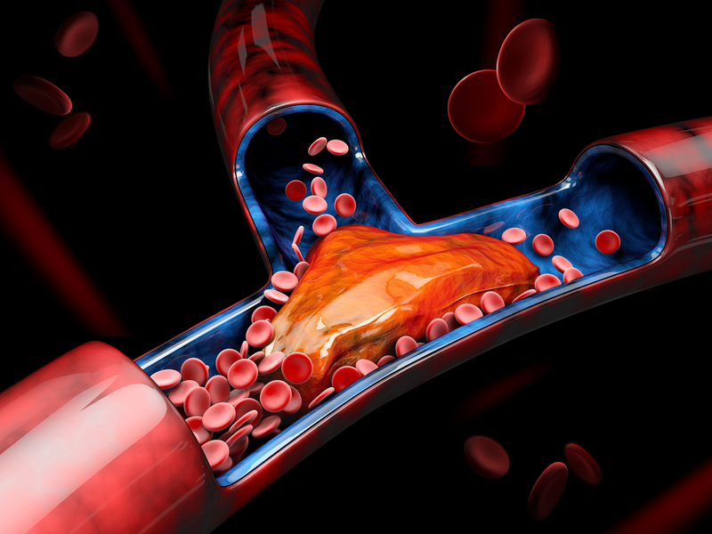 Increased blood clotting in African Americans